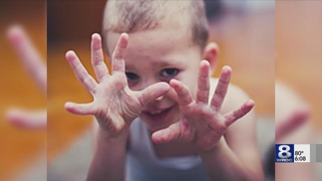 hand foot mouth disease_1533334819885.jpeg_50635427_ver1.0_640_360_1533408020581.jpg.jpg