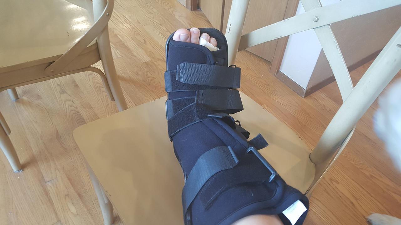 Cast walking boot broken foot._1555010139730.jpg.jpg